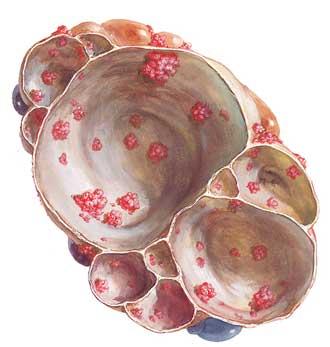 livmor større cyster i underlivet